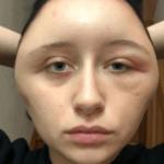 フランス美女(エステル)顔面肥大の原因はアレルギー反応?ある行動で顔面が2倍に!対処方は?【マサカの映像グランプリ】