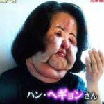 扇風機おばさんの元の顔が美人なのに整形依存の理由や原因、死因は?高須クリニック医院長との関係は?